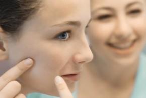 Consejos para eliminar las cicatrices del acné